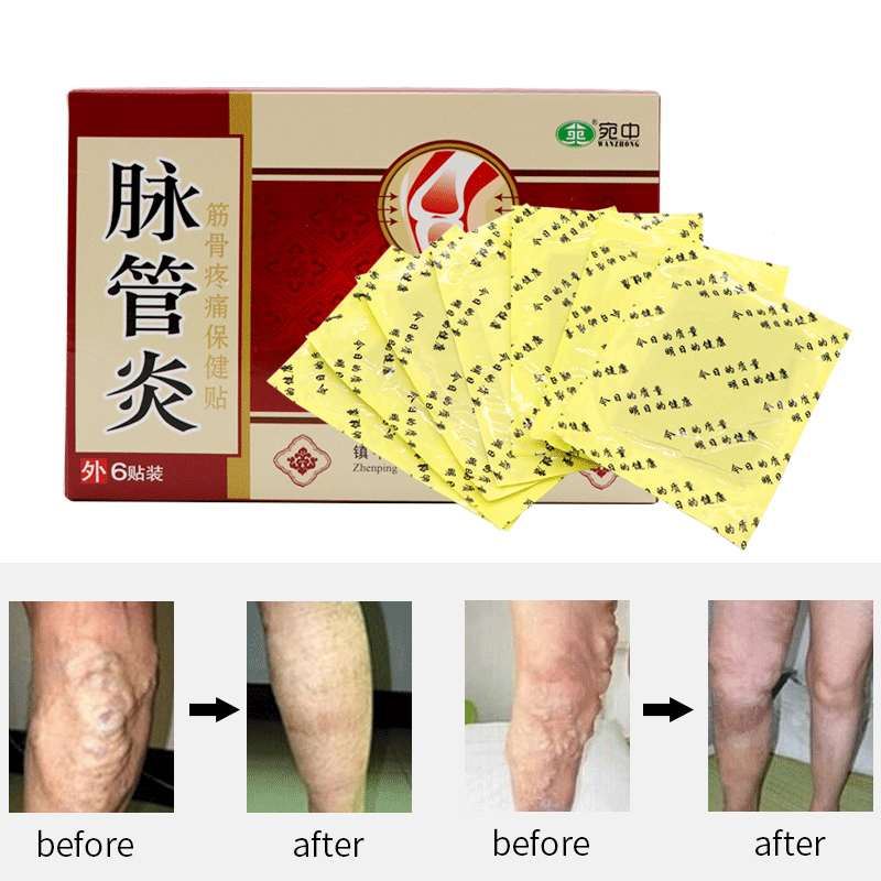 24PCS Chinese Traditional Herbal Medicine Patches Cure Spider Veins Varicose Treatment Plaster Varicose Veins Vasculitis Natural