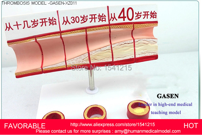 ANATOMIC HEART MODEL  PROCESS MODEL MEDICAL MODEL OF LIPID CHOLESTEROL AGE MODEL  CORONARY HEART DISEASE THROMBOSIS -GASEN-XZ011 hepatobiliary pancreatic twelve intestines section structural model of gastric gastroenterology medical whipple gasen xh001