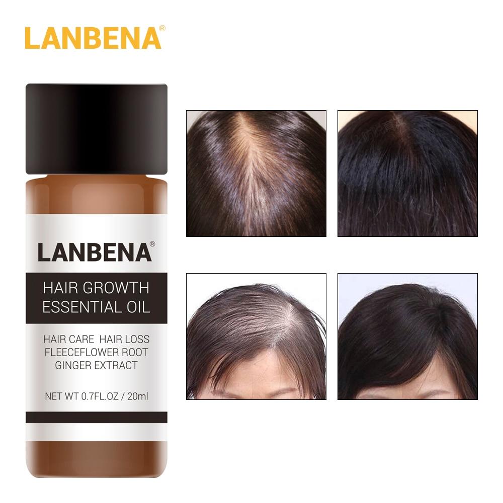 LANBENA Fast Powerful Hair Growth Essence Products Essential Oil Liquid Treatment Preventing Hair Loss Hair Care Andrea 20ml