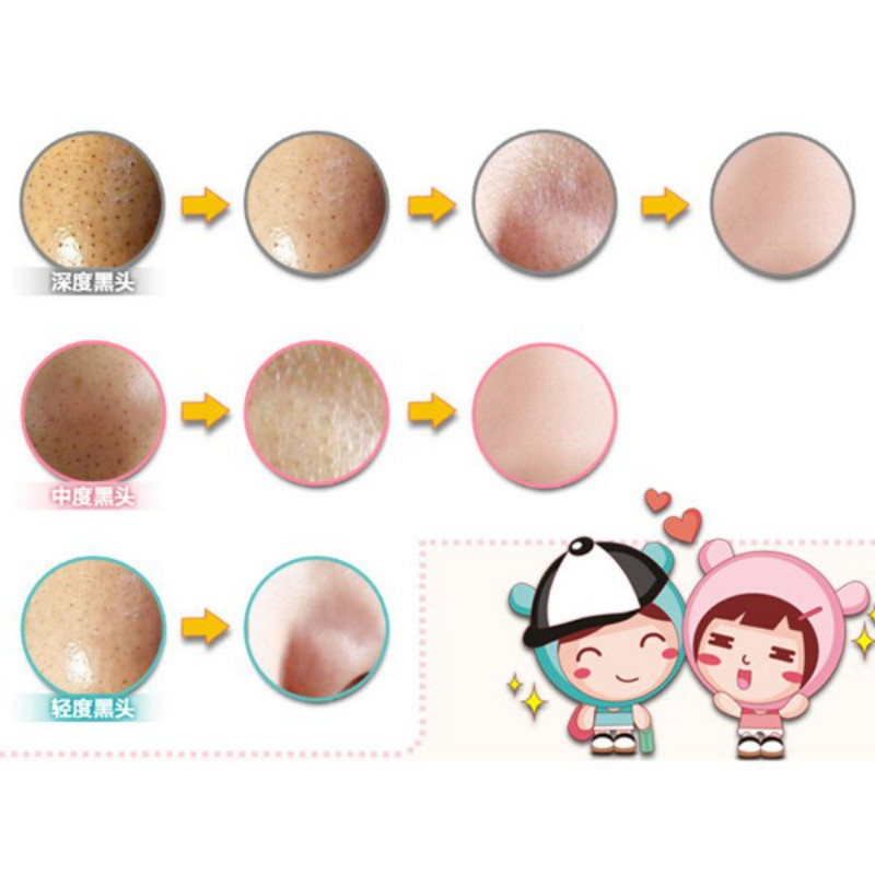 Nose Blackhead Remover Acne Mask Pore Cleanser Shrinking Pores Black Head 3pcs LI02