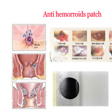 ZB hemorrhoid treatment anal fissure bleeding pain relief Anti hemorrhoid plaster herbal haemorrhoids patch 1pcs