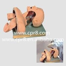 BIX-J51 Airway Intubation Model(With Alarm Device) W099