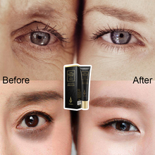 LAIKOU Eye Cream Hyaluronic Acid Serum Wrinkle Anti-Wrinkle Snail Remover Dark Circles Gel Remove Bag Anti Puffiness