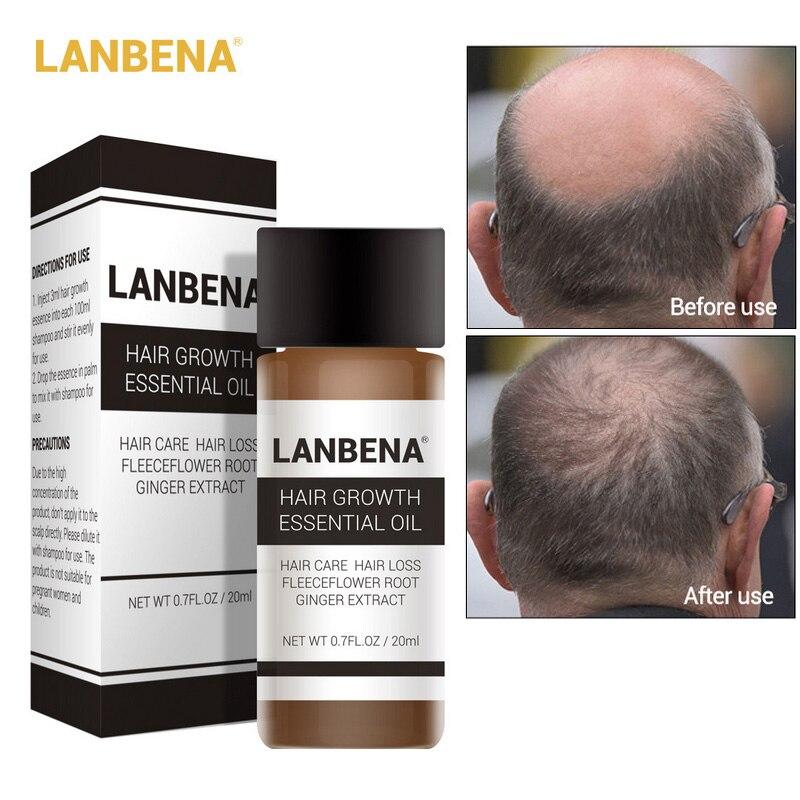 LANBENA 20ml Ginger Extract Hair Growth Essential Oil Prevent Hair Loss Strengthen Hair Nourish Awaken Hair Follicles Care