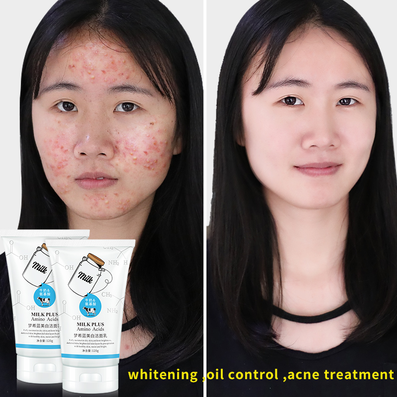 Promotion Limited MENGXILAN Amino Acid Facial Cleanser Moisturizing Acne Treatment Remove Blackhead Daily Face Wash Skin Care - 2
