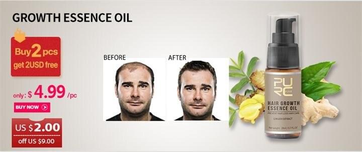 growth hair prevent hair loss