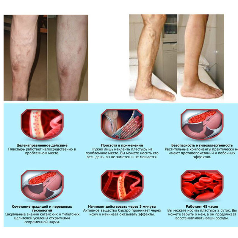 100% original Veins Varicose Treatment Plaster Treatment Leg Acid Bilges Itching Earthworm Lumps Old Bad Leg Vasculitis