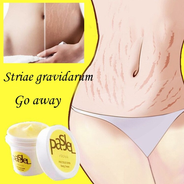 Removal Acne Scar Stretch Marks Cream Fat Scar Striae Gravidarum Treatment Blackhead Whitening Cream Stretch Marks