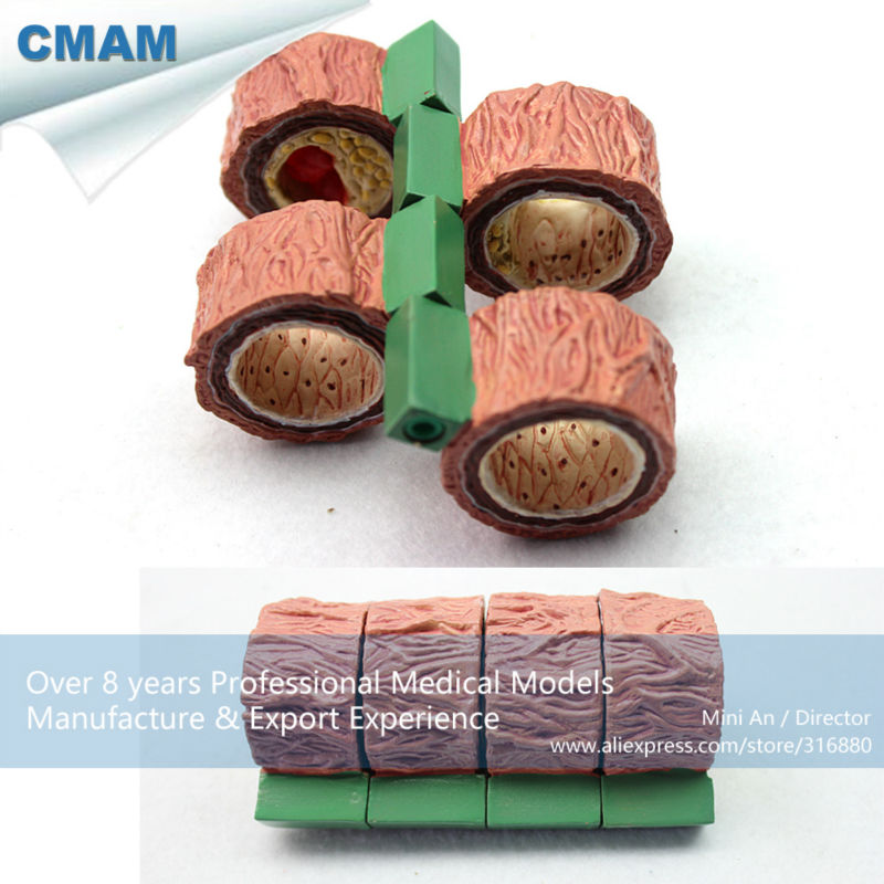 12483 CMAM-HEART07 4-Stage Cross Section Human Artery (Anatomical) Model, Anatomy Models > Heart Models 12004 cmam a04 anatomy animal cat acupuncture model anatomy models acupuncture models