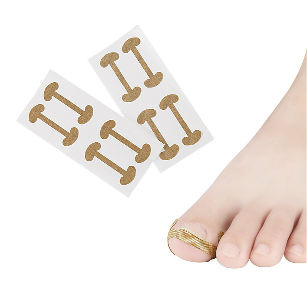 8Pcs=2pack Ingrown Toenail Corrector Stickers Paronychia Treatment Recover Corrector Pedicure Tools Fingernail Toe Nail Care