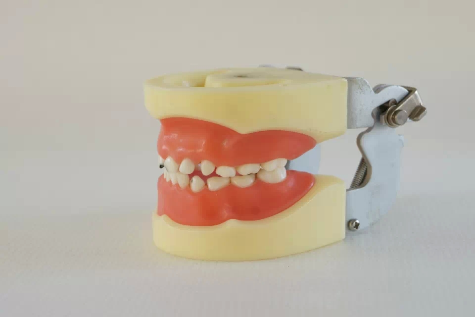Periodontosis Model Dental Tooth Teeth Anatomical Anatomy Dentist
