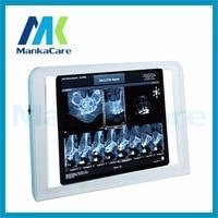 Manka Cura-best Medical LED x-ray film viewer, medico x ray film vista box, medico negatoscopio e x ray film illuminatore