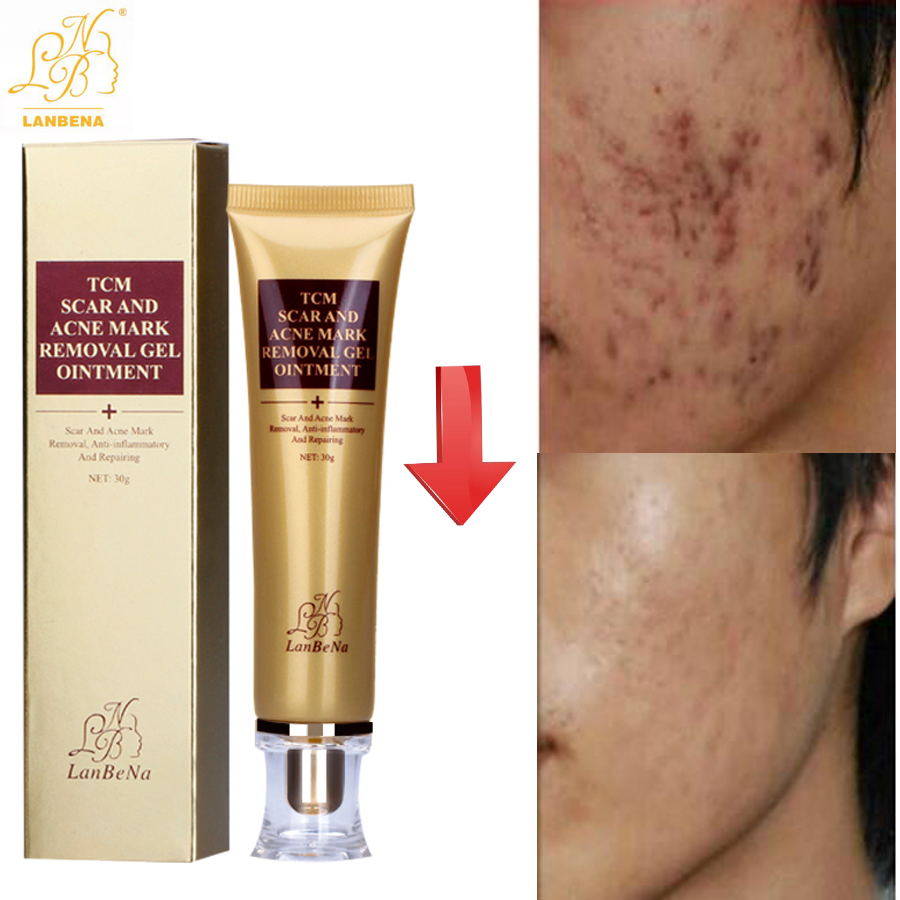 LANBENA Acne Scar Removal Strentch Marks Acne Treatment Shrink Pores Gel Bleaching Essence Whitening  Face Cream Skin Care