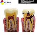 Dentadura Dientes modelo 6X, caries modelo de comparación, caries modelo, Dentista para La Enseñanza de La Ciencia Médica