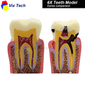 Denture Teeth model 6X, caries comparison model, tooth decay model,Dentist for Medical Science Teaching