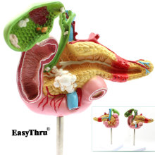 Medical Pancreatic Duodenal Gallbladder Pathological Model Gallstone Surgery Digestive System Model Medical Science figado liver pancreatic cystic structure model medical anatomical digestive stomach hepatobiliary gastrointestinal gasen xh003
