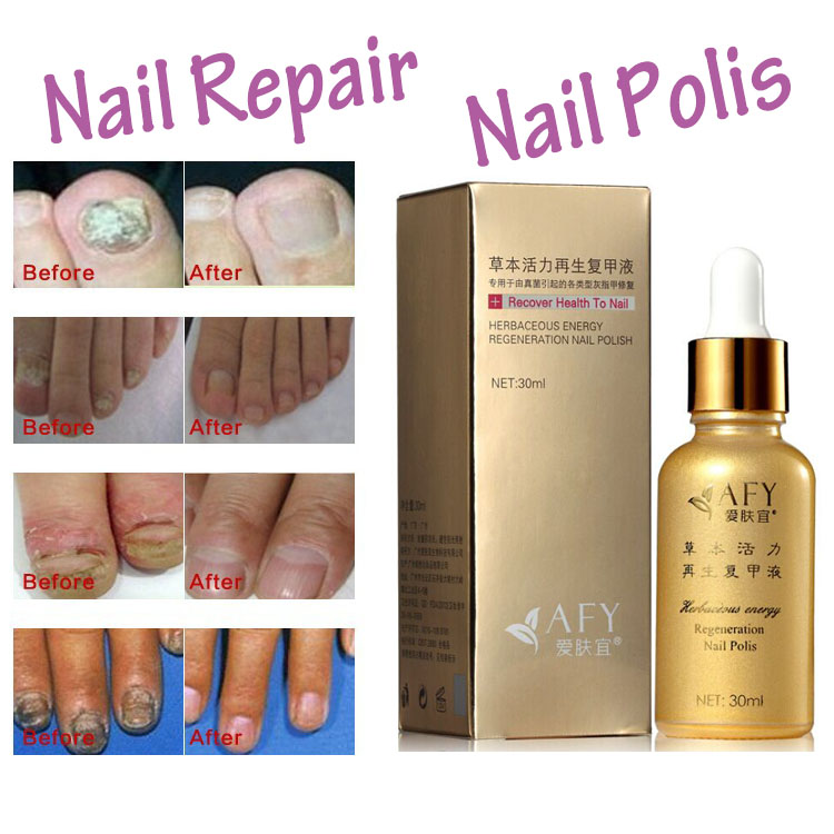 Fungal Nail Treatment Tcm Essence Oil Hand And Foot Whitening Toe Fungus Removal Feet Care Polish Tools Gel In Treatments From Beauty