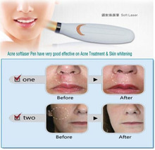 WANGSAURA Therapy Laser Pen Acne Pen Soft Scar Wrinkle Blemish Removal Pen Light Skin Treatment (white)