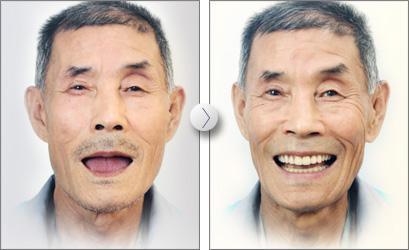 一個牙醫的良心忠告:做植牙的壞處