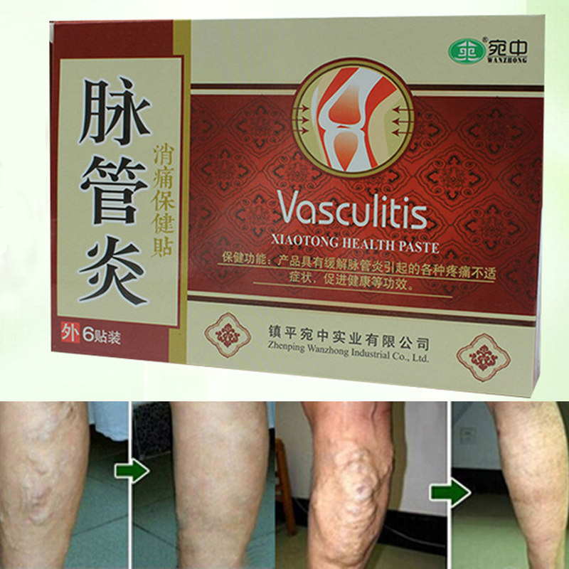 Spider Veins Varicose Treatment Plaster Varicose Veins Cure Patch Vasculitis Natural Solution Herbal Patches 10pcs diabetic patch lower blood sugar cure diabetes natural solution diabetes treatment diaremedium patch