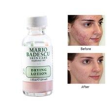 Um tratamento eficaz de acne, original mario badescu, secagem de loção 29ml, anti acne, soro, remoção de manchas