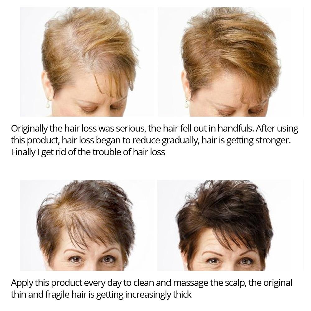 VIBRANT GLAMOUR Hair Growth Spray Serum Essential Oil Nourish Scalp Hair Roots Prevent Hair Loss Clean Scalp Grease Hair Care 3