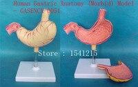 Modelo de anatomía gástrica humana (mórbida)-GASENCX-0051