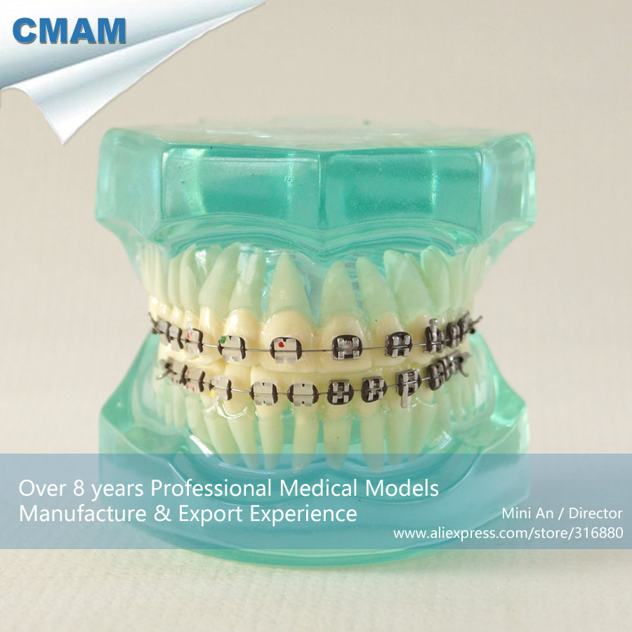 13044 CMAM-DH207-2 Clear Ortho Metal&Ceramic Tooth Dental Model, ORT series Jaw Model for Training of Dentistry 13033 dh204 3 ortho ceramic bracket dentist training oral dental ortho ceramic bracket model china medical anatomical model