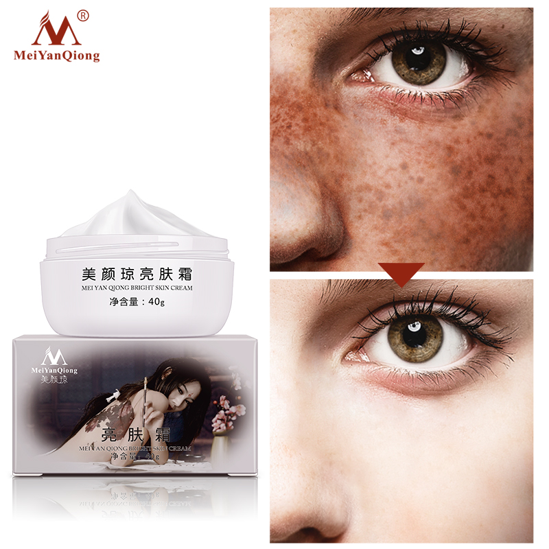 Strong Effects Powerful Whitening Freckle Cream 40g Remove Melasma Acne Spots Pigment Melanin Whitening Moisturizing Skin Care