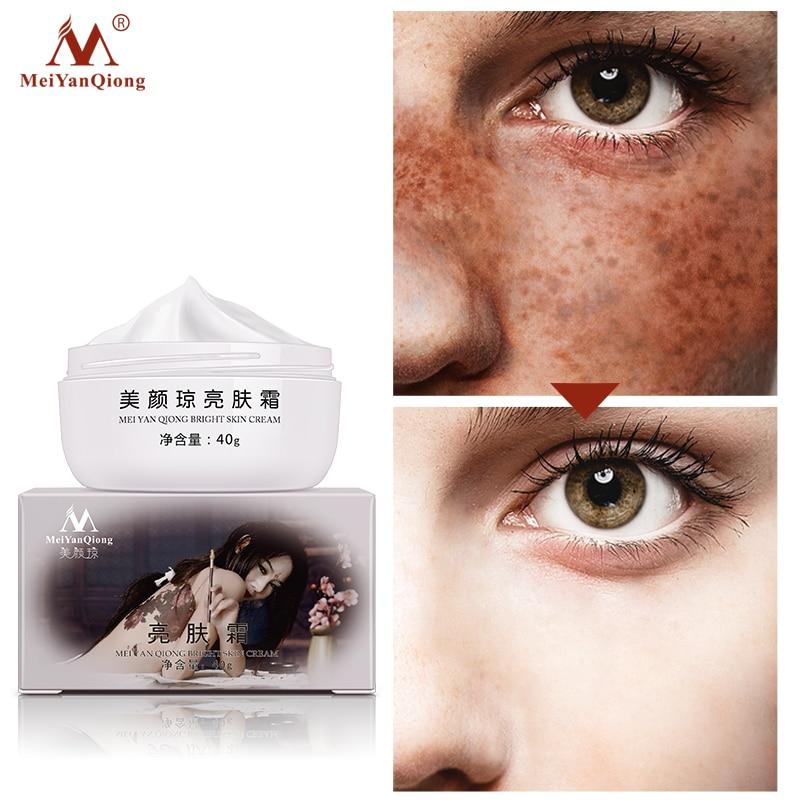 Strong Effects Powerful Whitening Freckle Cream 40g Remove Melasma Acne Spots Pigment Melanin Whitening Moisturizing Skin Care