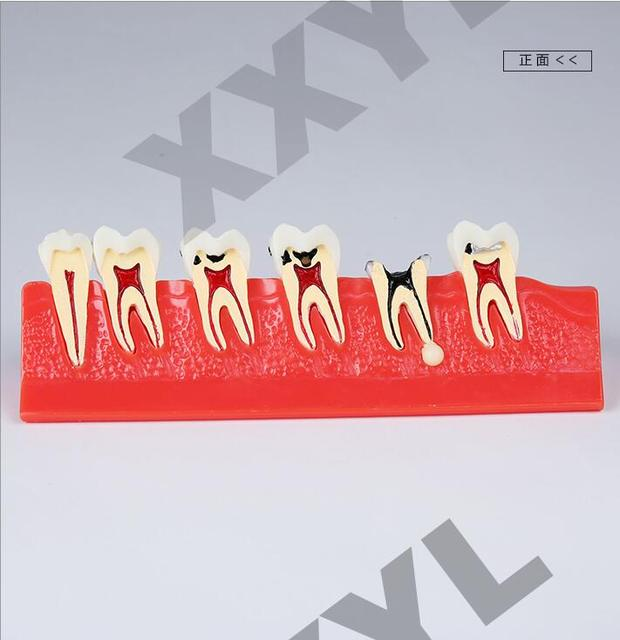 Dental Lab Ps4 Denture Teeth Human Anatomy Denture Teeth Caries