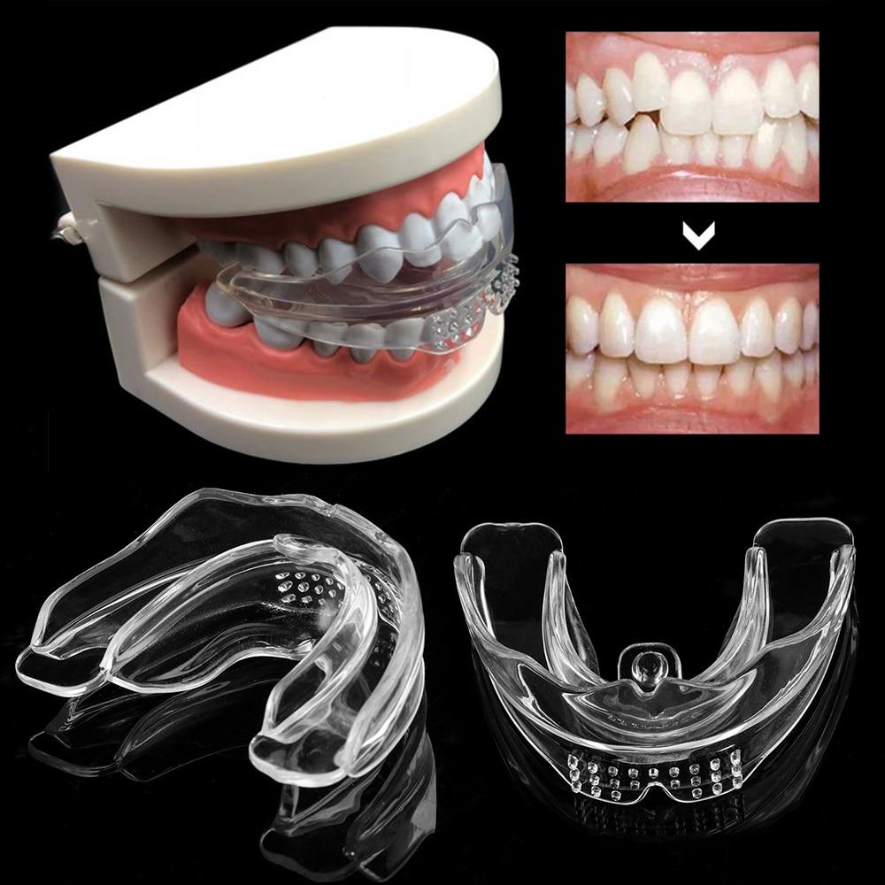 accolades-orthodontiques-en-silicone-dentaire-appareil-accolades-alignement-formateur-retenue-de-dents-bruxisme-protege-dents-lisseur