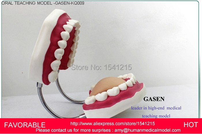 DENTAL TEETH MODEL 2017,DORAL CARE  MODEL BRUSHING GUIDANCE MODEL TOOTH MODEL,ORAL TEACHING MODEL-GASEN-KQ009 dental pathology model anatomical model teeth model dental caries periodontal disease demonstration model gasen den050