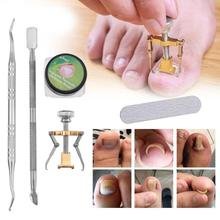 Ingrown Toe Nail Correction Tool Manicure Clipper Nail Correction Tools Paronychia Fixer Beauty Manicure Tool