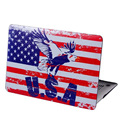 DHL Free Luxury Amazing Print Hard Case Protective Shell Cases Cover For Apple Macbook Air 13 Pro 13 Retina 13 13.3 inch