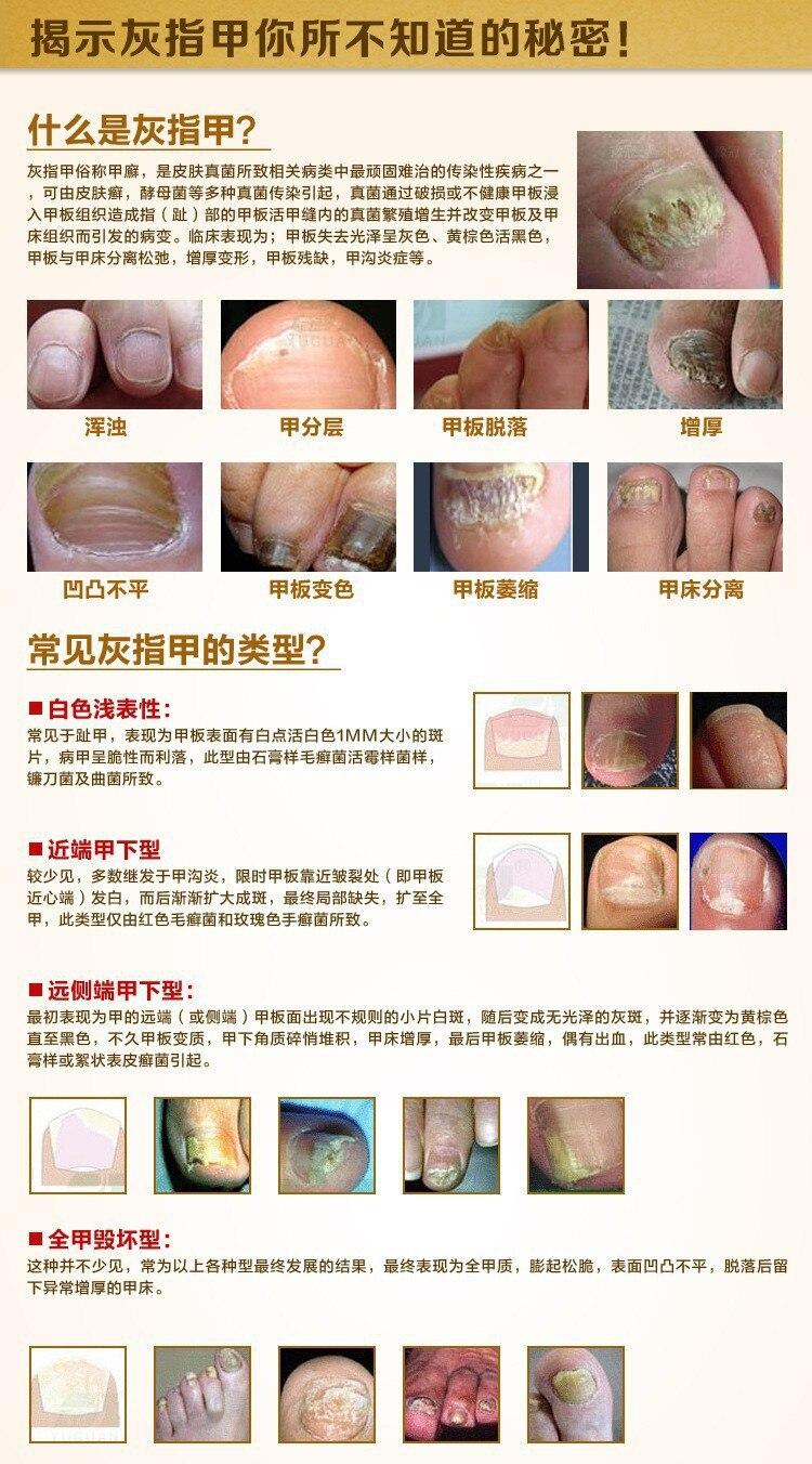AFY Fungal Nail Treatment TCM Essence Oil Hand and Foot Whitening Toe Nail Fungus Removal Feet Care Nail Tools Nail Gel Polish 8