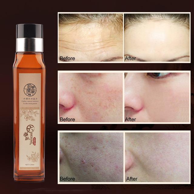 Meiking argireline suavizado de tóner cuidado de la piel natural de hidratación de tóner reducir los poros de control de aceite aclarar el color de piel de las mujeres