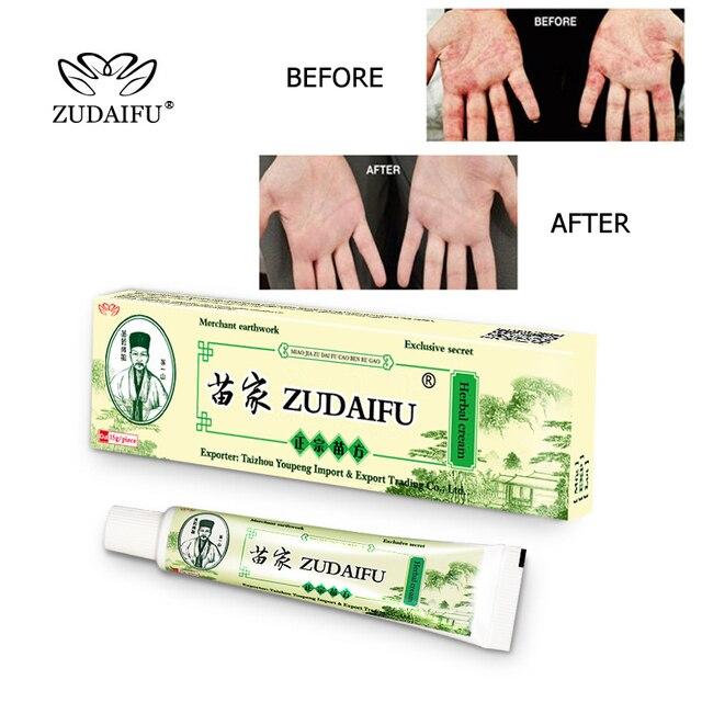 1 pzudaifu cuerpo Psoriasis crema Psoriasis ungüento limpieza Facial