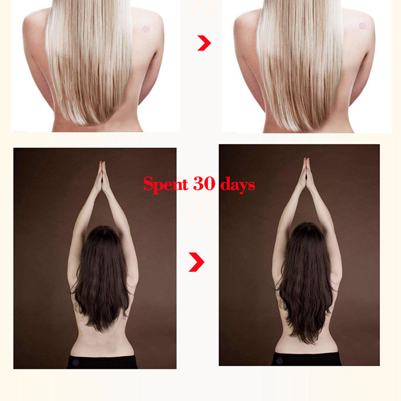 Ginger Oil Hair Growth Faster Grow Hair Ginger Shampoo Stop Hair Loss Treatment New Arriva