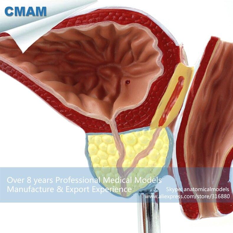 CMAM-UROLOGY07 Pathological Human Prostate Model for Education, BPH Prostate Examination Model lego education 9689 простые механизмы