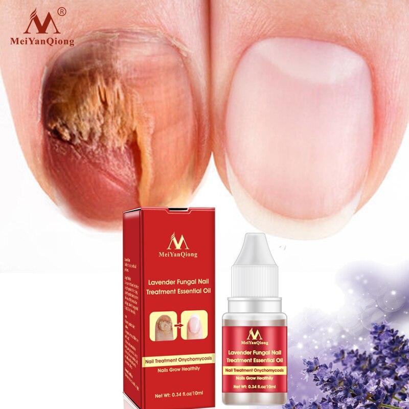 MeiYanQiong Lavender Nail Repair Essence Anti-fungal Nail Infection ...