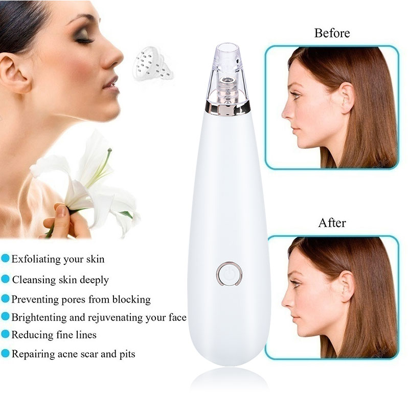 2019 Drop Shpping ABS Black Head Cleaner Blackhead Removal Equipment Fast Effective Beauty Health Blackhead Beauty Apparatus