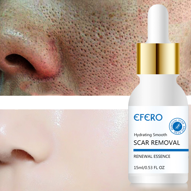 EFERO Acne Removal Serum for Face Cream Remove Pimples Acne Whitening Cream Acne Treatment Shrink Pores Hyaluronic Acid Essence in Serum from Beauty Health