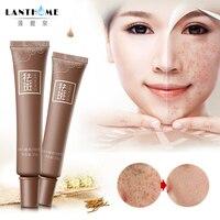 Dark Spot Corrector Skin Whitening Fade Cream Lightening Blemish Removal Serum Reduces Age Spots Freckles Melasma