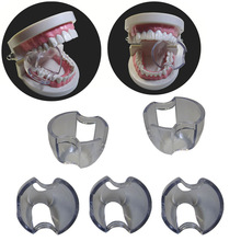 25 stks / partij Dental Lip Retractor Cheek Expander Mondopener voor Posterior Tanden Intraoral Apparatuur