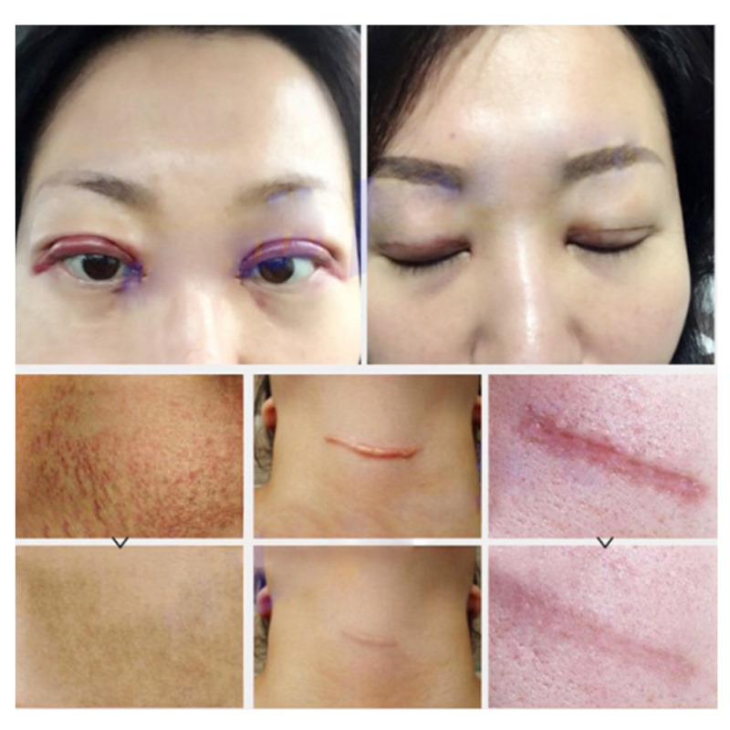 Scar facial cream post-op — pic 15