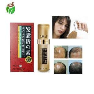 80 ml=2 Packs fast hair growth spray stop hair Broken products bald hair grow oil natural solution Bald hair growth Essence