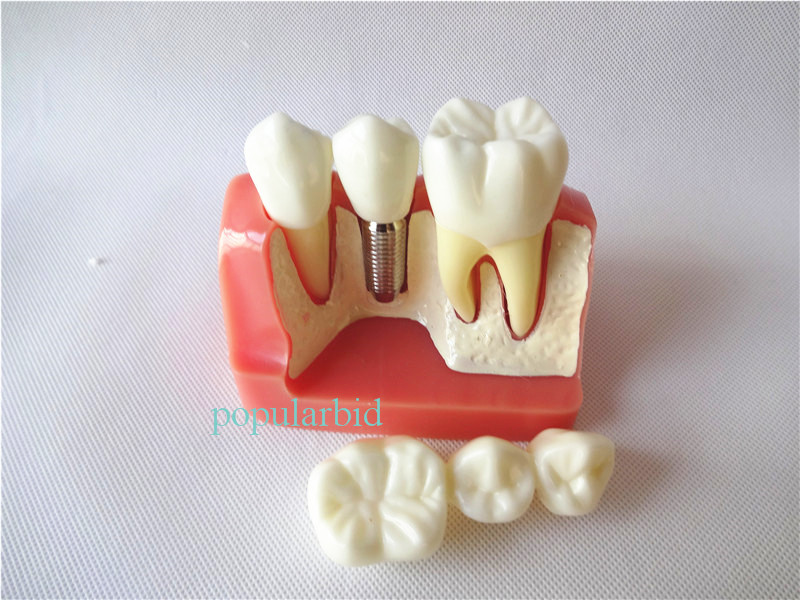 Dental Implant Analysis Crown Bridge Demonstration Dental Teeth Model 2017 new arrival high quality dental implant demonstration bracket simulation teeth model teeth removable