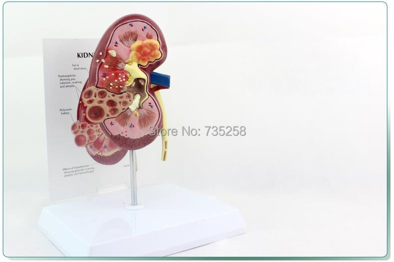 Kidney Disease (CKD) variable Anatomical Model,Kidney Calculi Pathology Model,Normal Kidney Pathological Comparative Model medical human kidney anatomical model of renal pathology hospital urologist model