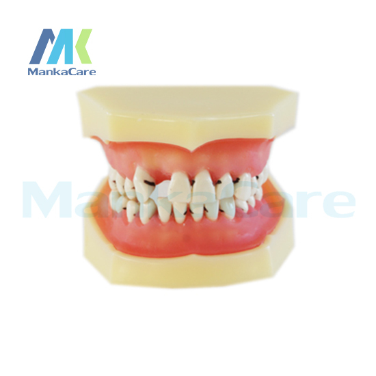 Manka Care - Gingival can be easily removed for demonstrating bone resorption and sub-gingival calculus Oral Teeth Tooth Model